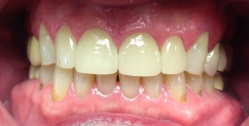 realigned teeth after dental procedure