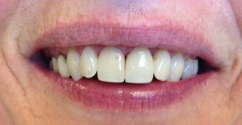 realigned and whitened teeth after dental procedure