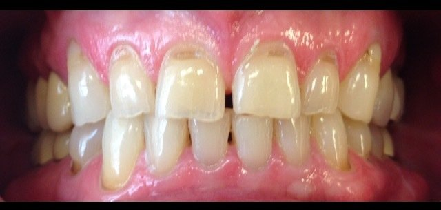gapped front teeth before dental procedure