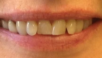 misaligned teeth before dental procedure